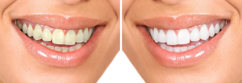 Teeth Whitening Overland Park, KS