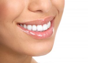 Dental Veneers Overland Park, KS